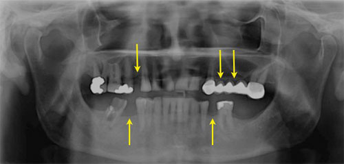 Αρχική πανοραμική ακτινογραφία. Με τα βέλη φαίνονται οι περιοχές με τα ελλείποντα δόντια