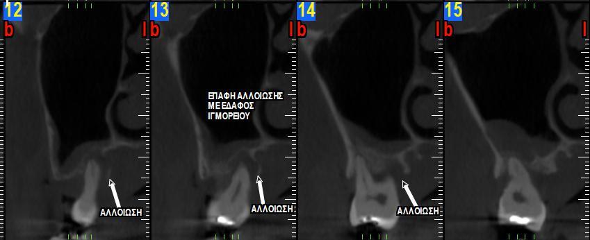 Ακτινογραφική εικόνα πριν την εξαγωγή του δοντιο