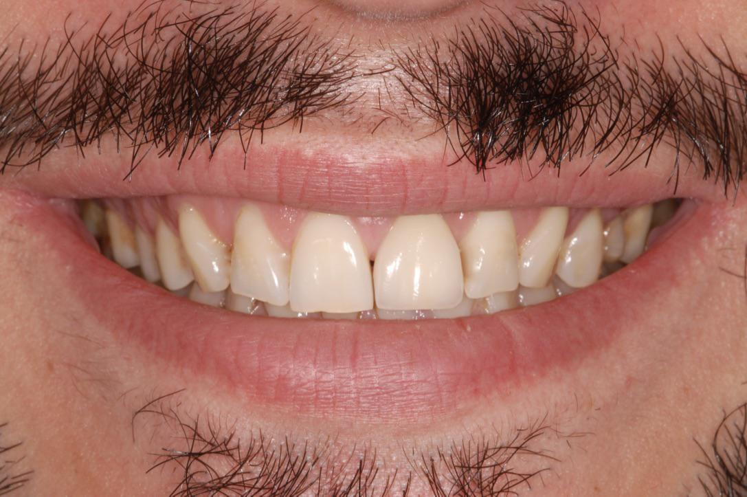 Τελικό χαμόγελο ασθενούς