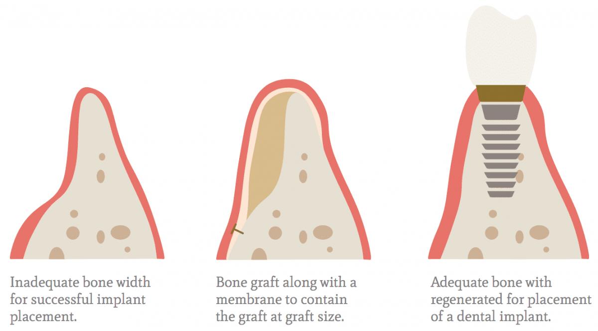 Ανάπλαση οστού
