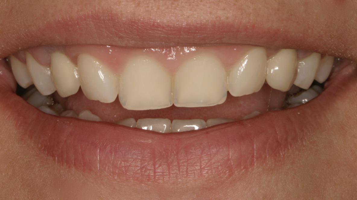 Το χαμόγελο της ασθενούς αποτυπώνει την τελική αισθητική