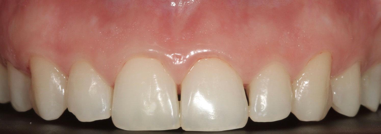 Εικόνα τετράγωνων και μικρών σε μέγεθος δοντιών που δίνουν αντιαισθητική εικόνα
